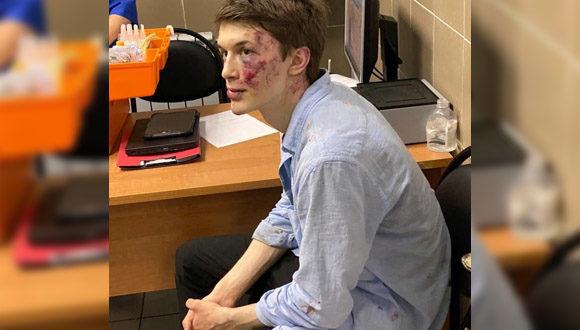 Opozycjonista Jegor Żukow został zaatakowany przy wejściu do domu